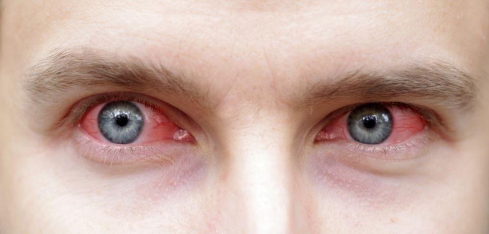 Czerwone oczy podczas palenia marihuany, thc thc.info