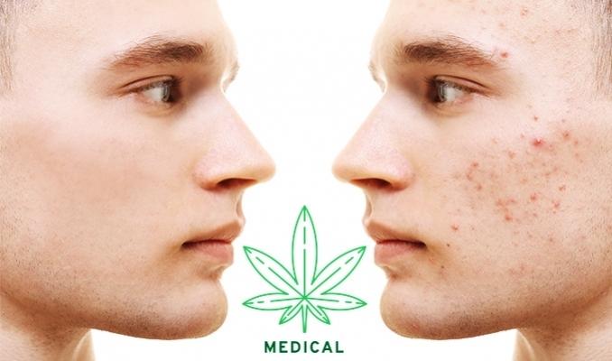 Leczenie trądziku z pomocą marihuany, thc thc.info